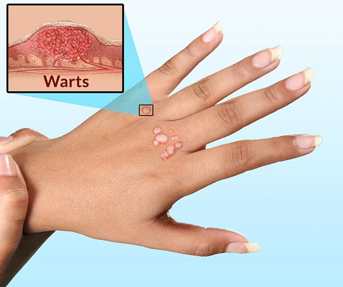 Làm thế nào để có thể điều trị dứt điểm mụn cóc trên da.