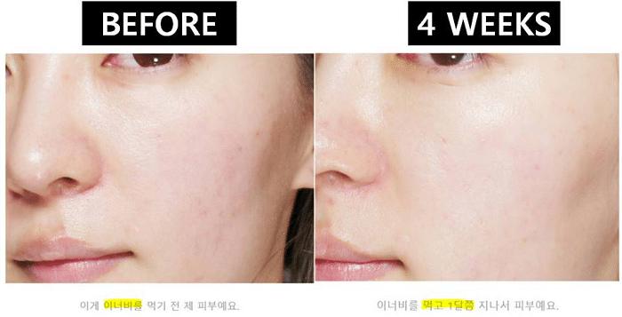 Làn da của khách hàng thay đổi rõ rệt khi dùng viên uống cấp nước aqua rich.
