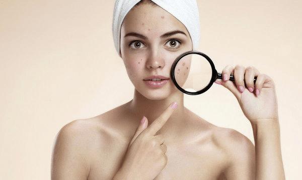 Cách nào giúp trị dứt điểm mụn viêm đỏ trên làn da một cách hiệu quả nhất.