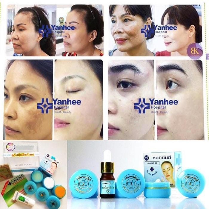 Công dụng kem trị mụn Yanhee mang lại