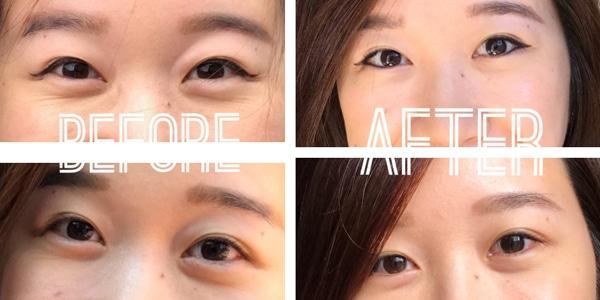 mặt nạ mắt collagen purederm