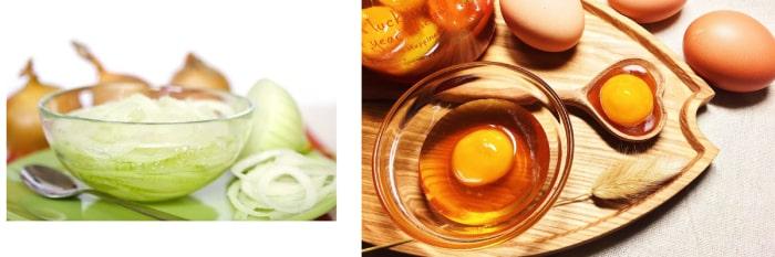 cách trị gàu và rụng tóc bằng trứng gà