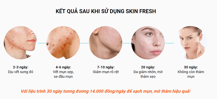xịt lợi khuẩn trị mụn skin fresh