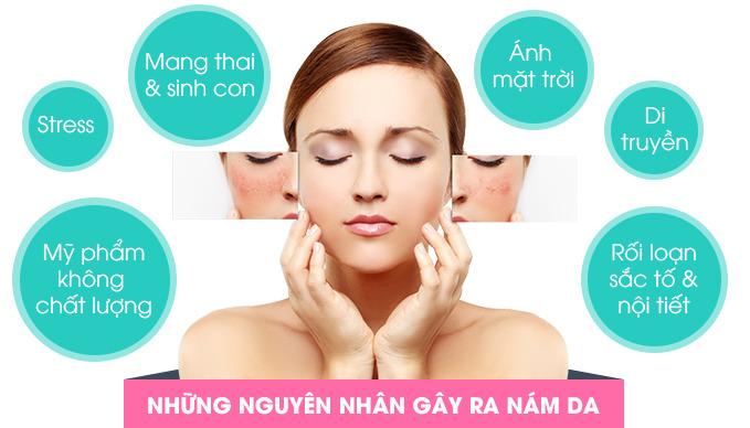 Kem trị nám hàng Việt Nam
