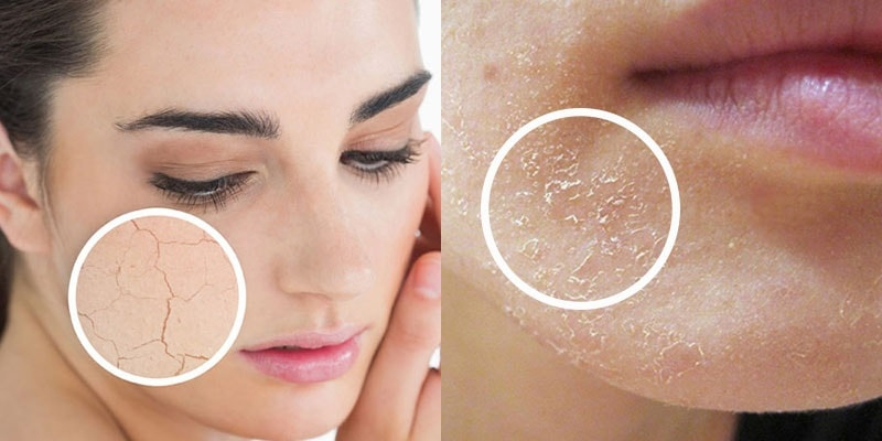 cách chọn sửa rửa mặt cho da dầu